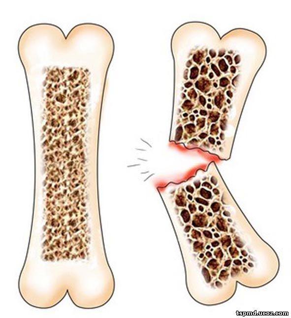Недостаток кальция в костях