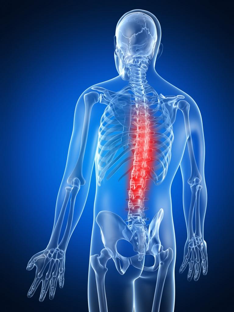 1. Остеохондроз: причины, рекомендации, лечебная гимнастика
