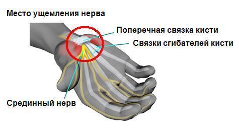 Синндром карпального канала