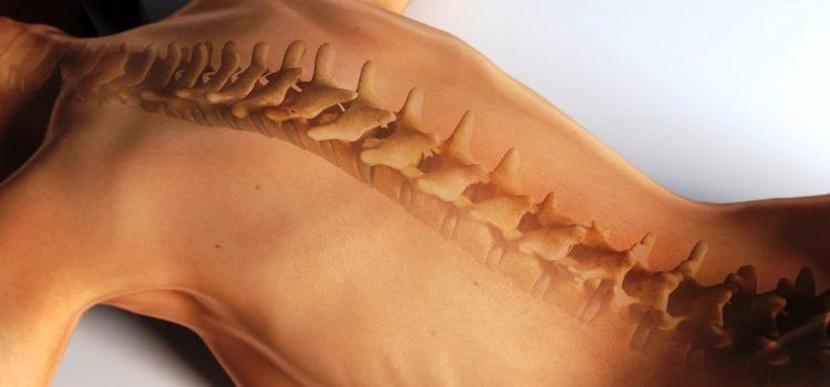 Дорсопатия: причины, симптомы, лечение