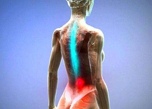 Боль в коленном суставах после замены сустава причины