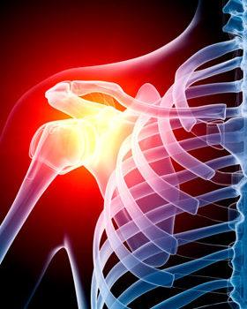 Как появляется артроз плечевого сустава? Симптомы и методы лечение.