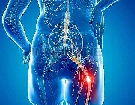 Симптомы ущемления седалищного нерва. Консервативное, медикаментозное и оперативное лечение.